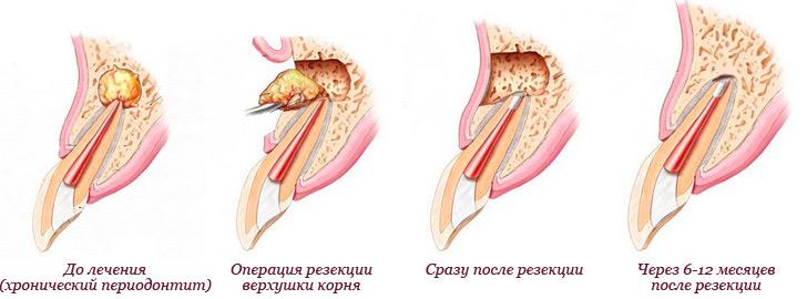 Хирургическое лечение периодонтита